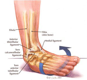 Ankle Sprain Treatment in Gaithersburg MD