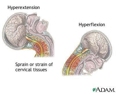 Hyperextension Hyperflexion Sprain or strain of cervical tissues ADAM